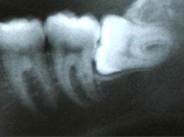 """""""пилить """"... :) да ничего не будут вам пилить.  Посверлят немного, это да.  Ну как при обычном лечении зубов..."""