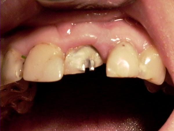 отбеливание зубов в домашних условиях купить