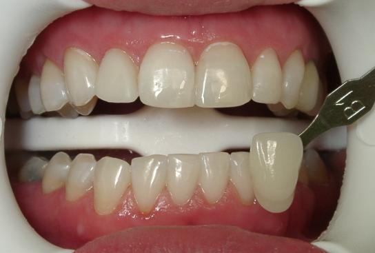 безвредное отбеливание зубов